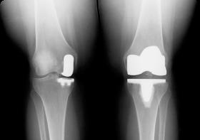 Больничный лист после эндопротезирования тазобедренного и коленного сустава