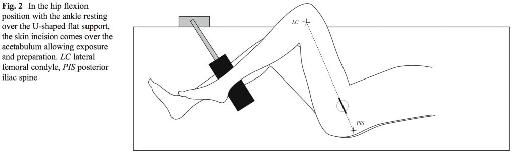 Рис 2. В позиции, когда бедро согнуто, а голеностоп помещается на U-образной опоре, разрез проходит над вертлужной впадиной и обеспечивает хороший досткп к месту протезирования. LC боковой мыщелок, PIS - задняя подвздошная кость.