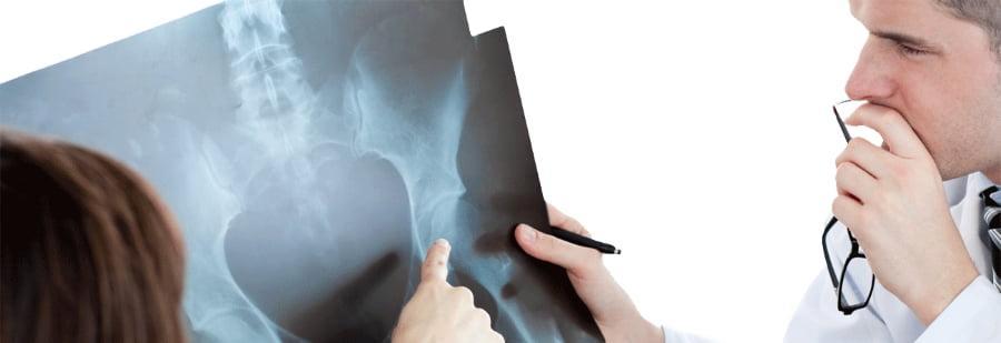 Анализ успешности задне-бокового доступа при эндопротезировании
