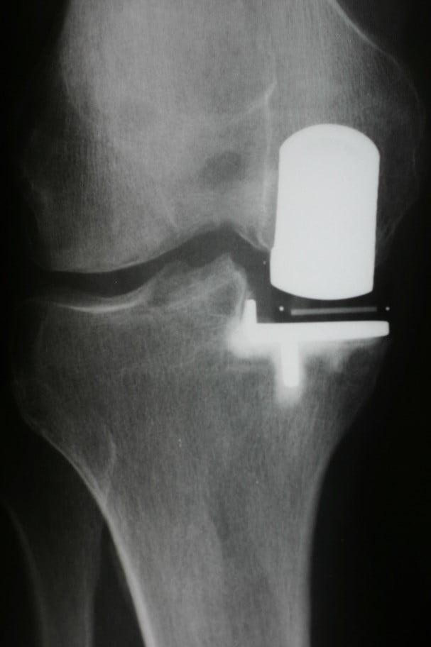 Однополюсное (частичное) эндопротезирование сустава