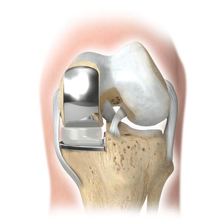 Артроз коленного сустава: лечение и мифы