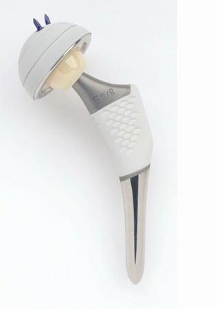 Протез тазобедренного сустава osteonics лечение коленных суставов народная медицина