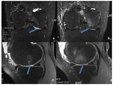 Рис.8. Результаты предоперационного МРТ сустава 60-ти летней женщины с повреждением хрящевой ткани правого бедренного мыщелка (а и с). Стрелками показаны места повреждения. b и d – МРТ через год после операции. Стрелками показано восстановление поврежденной ткани.