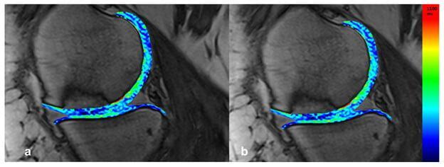 Рис.9. Т2-картирование. Значения Т2 показателей одинаковы для восстановленной ткани и нативного хряща (36±6 ms).
