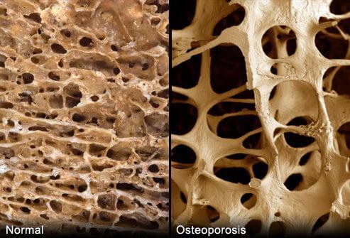 Как продлить срок службы эндопротеза