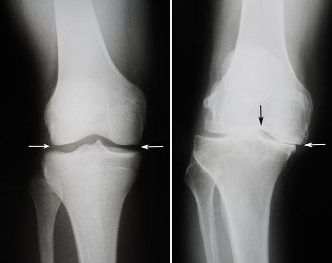 Гимнастика для коленных суставов не помогает при артрозах