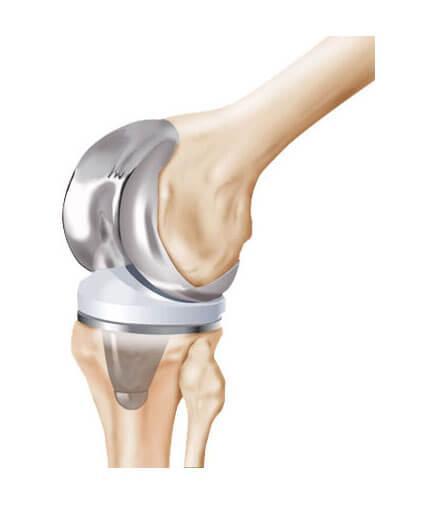 замена сустава колени