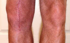 Контрактура коленного сустава после эндопротезирования: причины, симптомы, лечение
