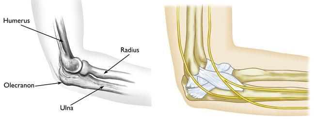 Эндопротезы для локтевого сустава