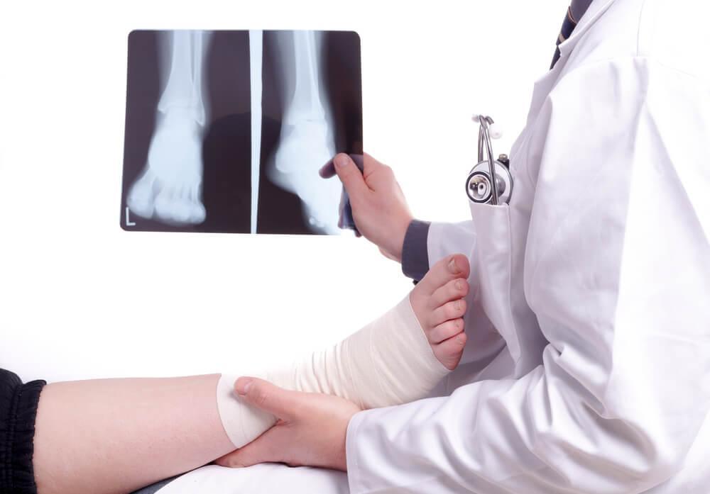 Перелом малой кости на ноге