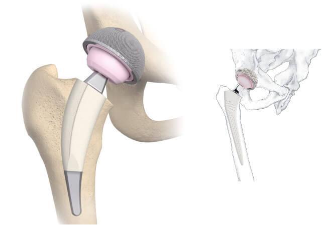 После эндопротезирования тазобедренного сустава отекла нога кости и суставы своды стопы