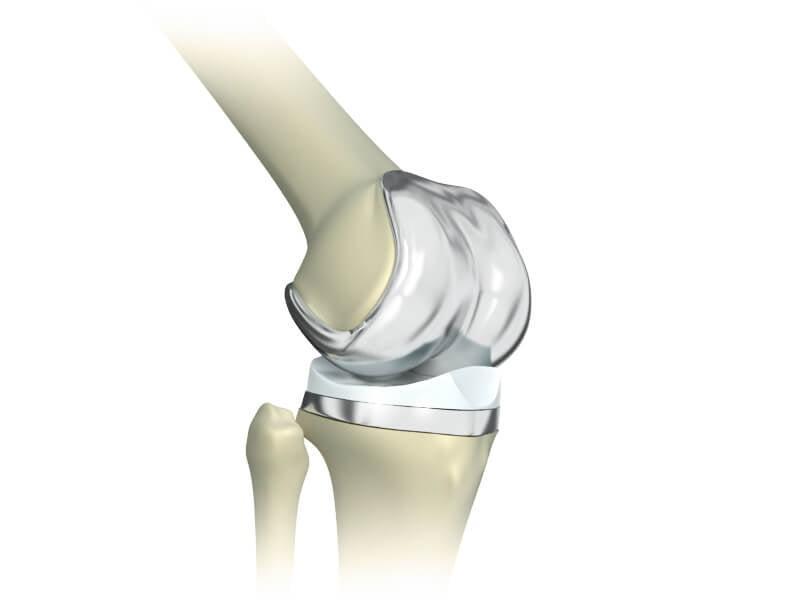 Смоленск протезирование коленного сустава бурсит коленного сустава симптомы фото