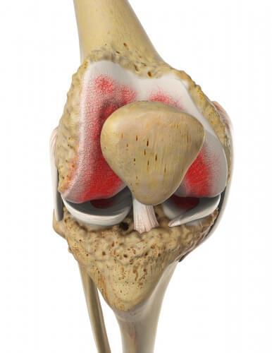 Замена тазобедренного сустава при вич инфекции локтевые суставы артрит