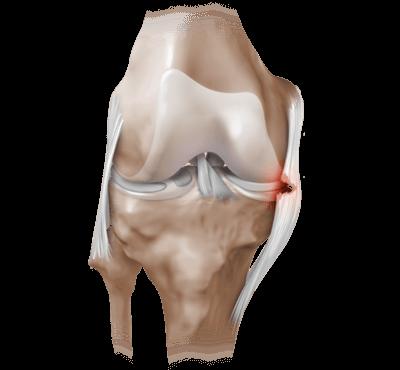 Информация об артроскопии коленного сустава: отзывы, осложнения, видео