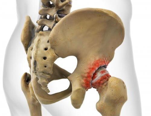Операция по замене коленного сустава в сургуте ударил локоть болит 2 месяца