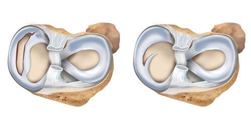 Артроскопия мениска и методы восстановления: достичь цели по принципу «Шаг за шагом»