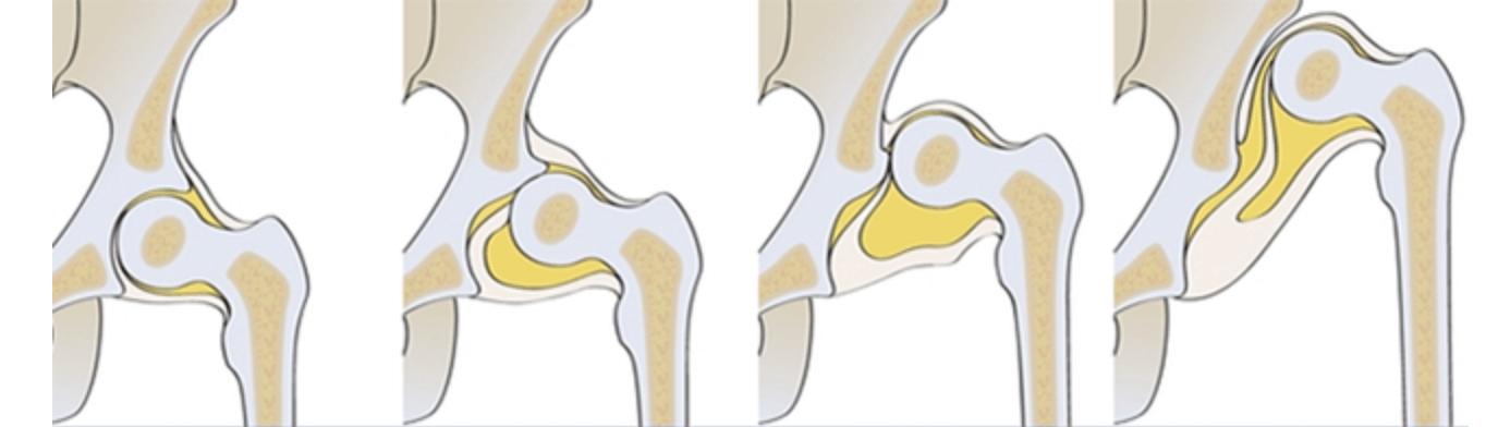Остаточная дисплазия суставов описание болезни