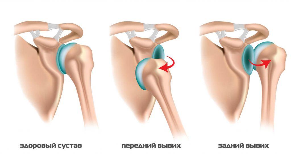 Плечевой сустав после травмы и лечение