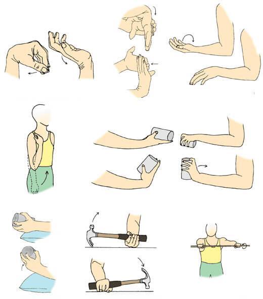 Восстановление функций локтевого сустава после его замены