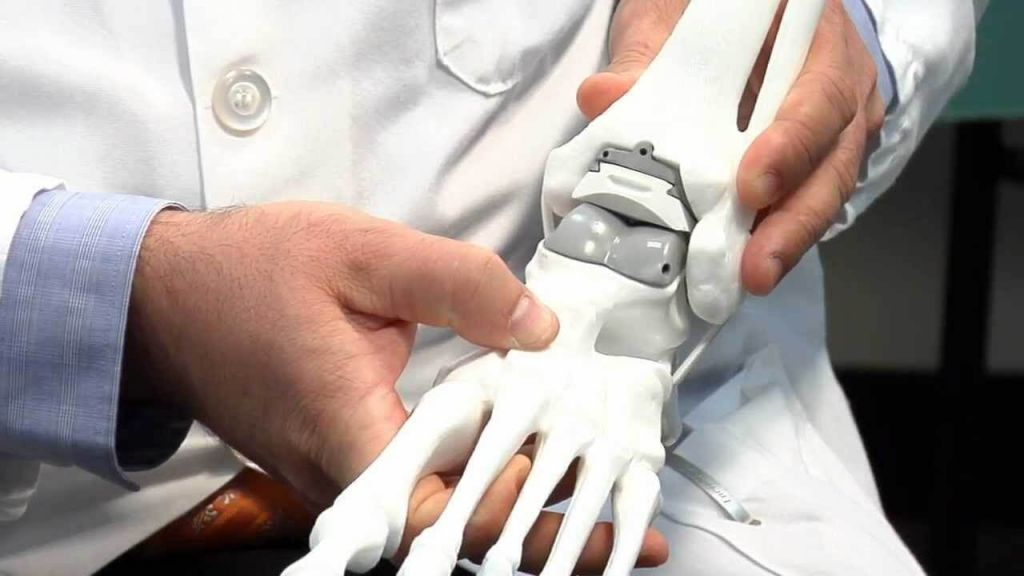 Цена и качество эндопротезирования голеностопного сустава в России