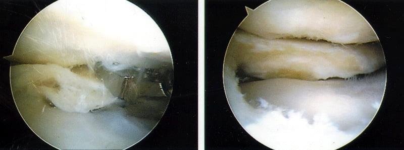 Виды резекций мениска коленного сустава: список показаний и последствия