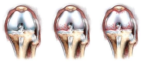 Имплантирование коленного сустава боли в левом суставе бедра
