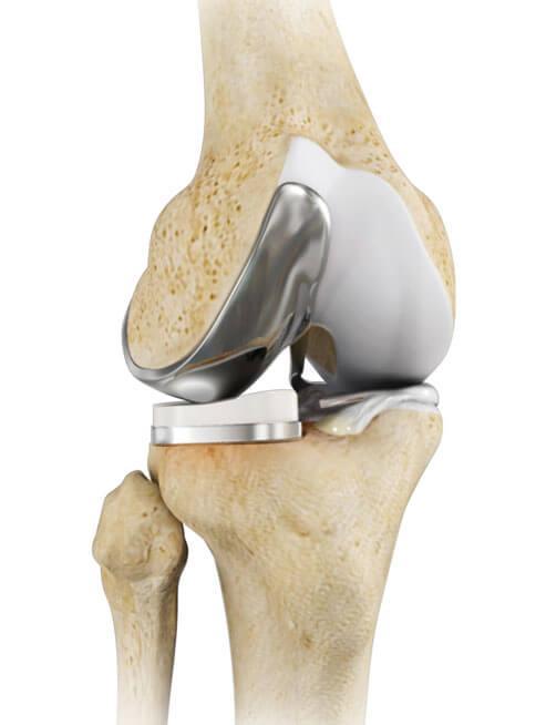 Эндопротезирование коленного сустава отзывы осложнения внии им вредена болезни собак, разрыв передней крестовидной связки коленного сустава