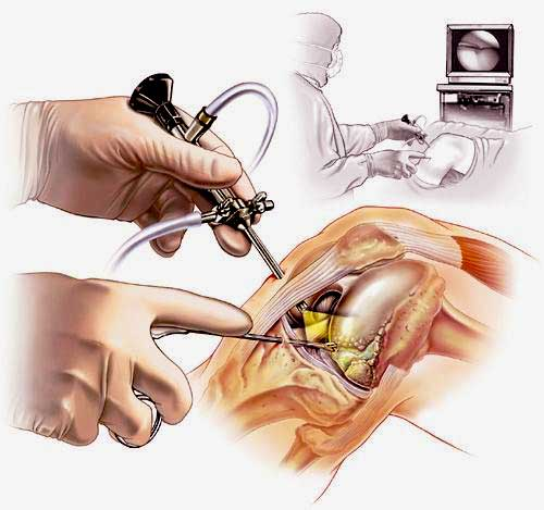Артроскопия коленного сустава как проводится