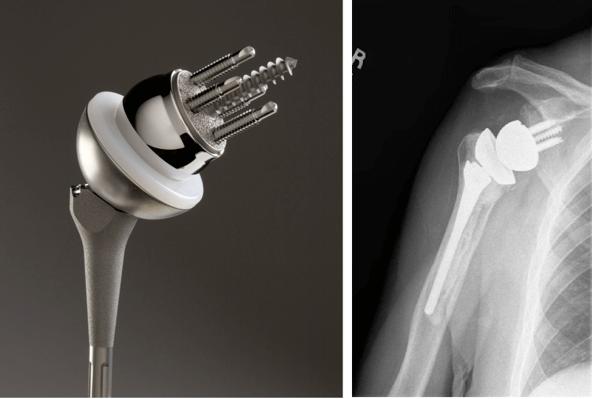 Цена эндопротез плечевого сустава мазь здоровые суставы