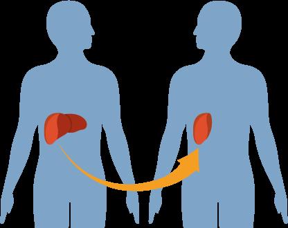 Эндопротезирование в Чехии – преимущества лечения, реабилитации и диагностики