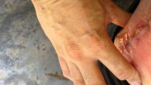 Опасность гноя после эндопротезирования тазобедренного или коленного сустава