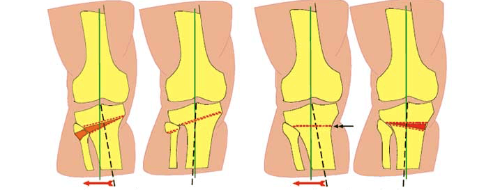 Суть корригирующей остеотомии коленного сустава: тактика хирургии и преимущества