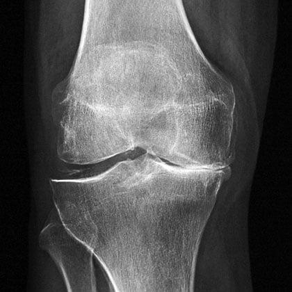 болит колено и тянет живот