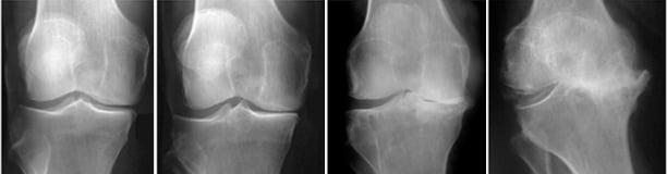 Гонартроз коленного сустава 3 и 4 степени: прогноз выздоровления
