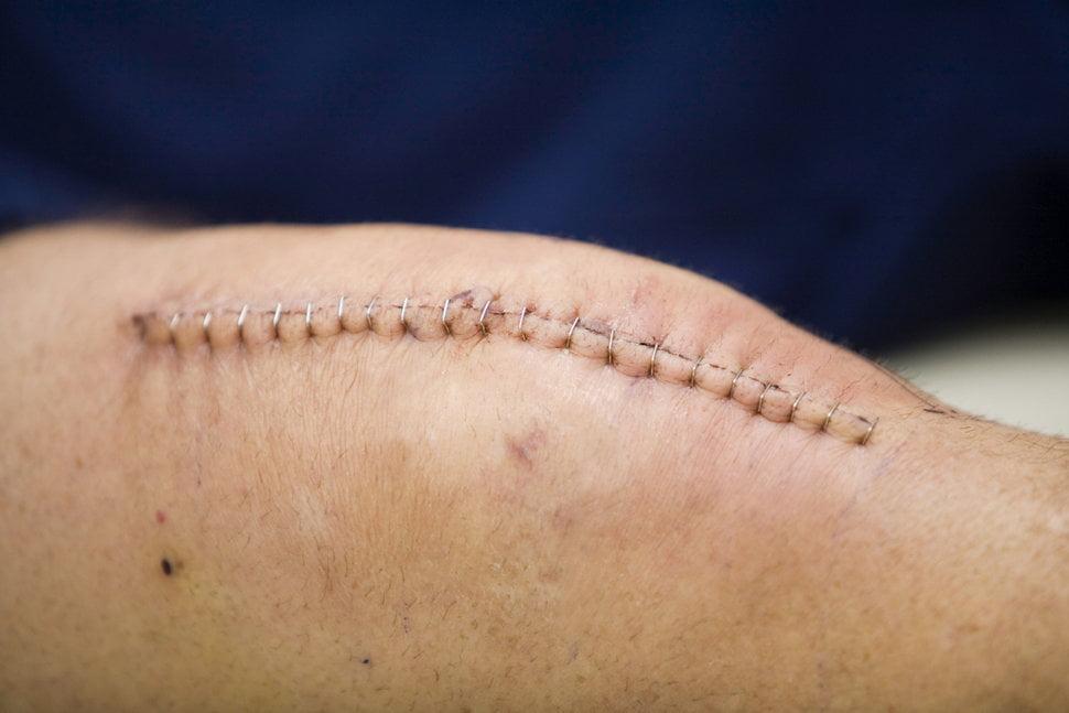 Эндопротезирование коленного сустава – шанс восстановить функции конечности
