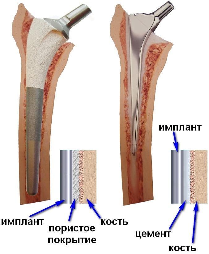 Продажа протеза тазобедренного сустава вымывание солей из суставов