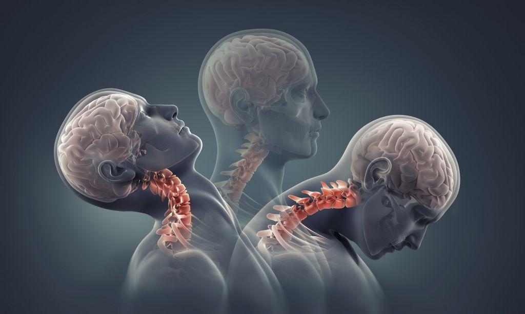 Компрессионный перелом: лечение и реабилитация позвоночника после повреждения