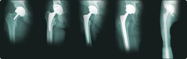 Кардиостимулятор не помеха для операции по эндопротезированию суставов