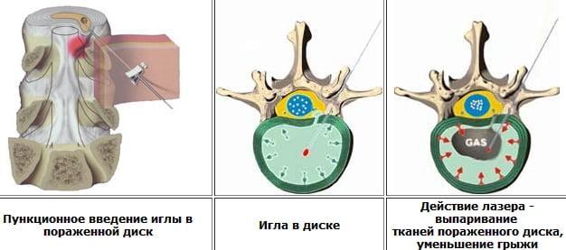 Удаление межпозвоночной грыжи, полное описание
