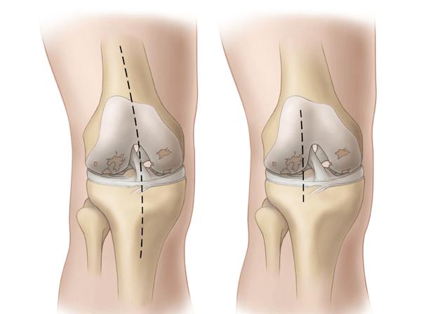 Гонартроз коленного сустава 2 степени - перспективы