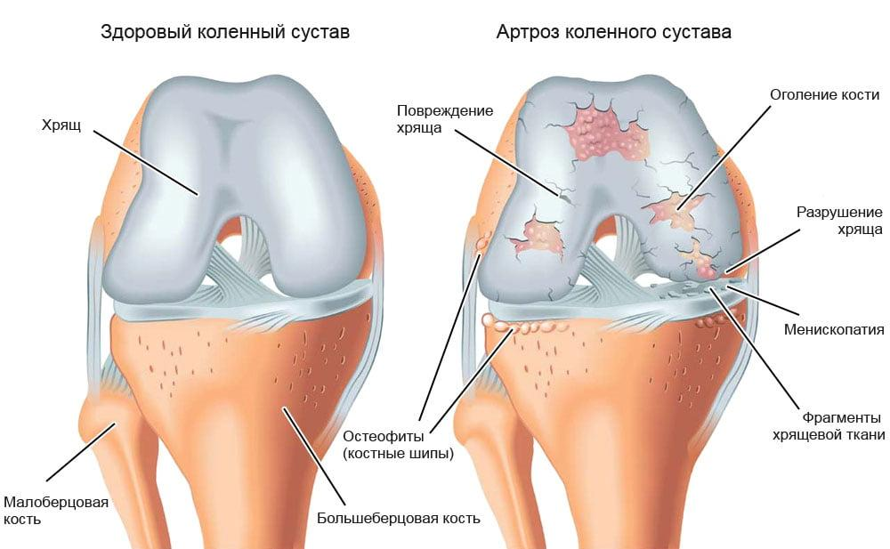 Идиопатический остеоартроз коленных суставов заболевание локтевого сустава лечение