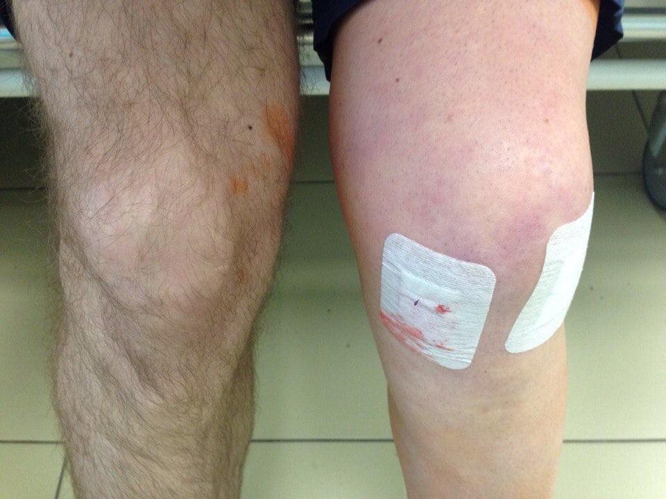 В каком снатории ппроводят реабилитации с травмой коленного сустава коксартроз тазобедренного сустава лечение уколами