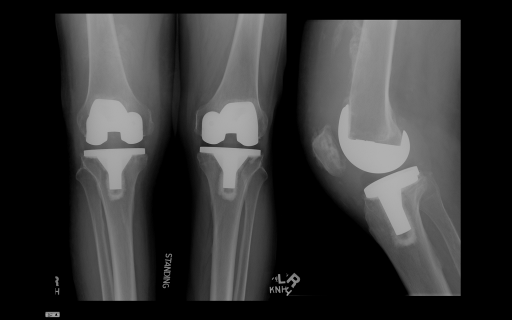 Эндопротезирование двух коленных суставов одномоментно