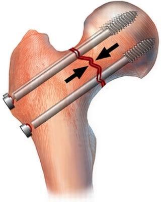 Перелом шейки бедра тазобедренного сустава: виды, лечение и последствия