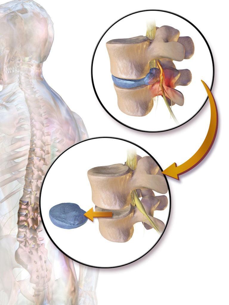 Лечение межпозвоночной грыжи и протрузии центры