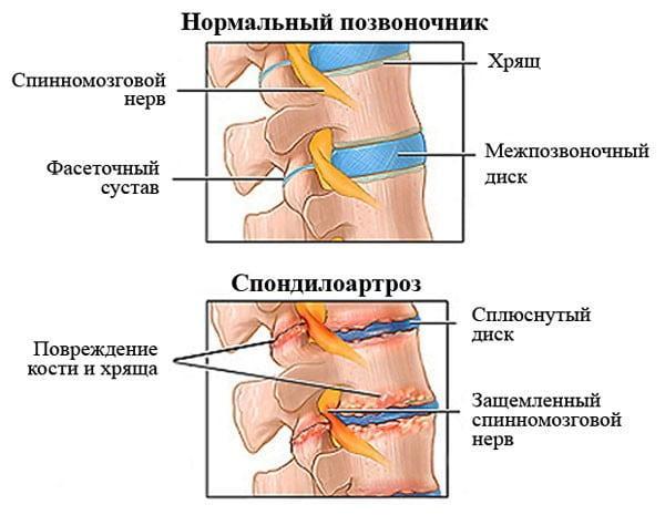 артроз и спондилоартроз