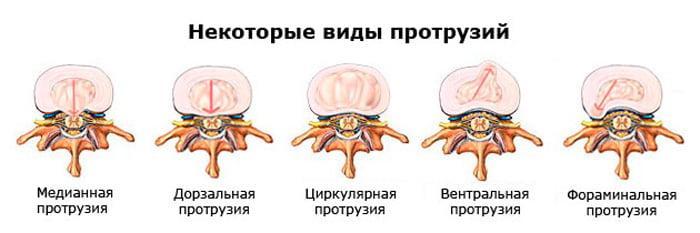 Отзывы о лечении грыжи позвоночника и других заболеваний позвоночника