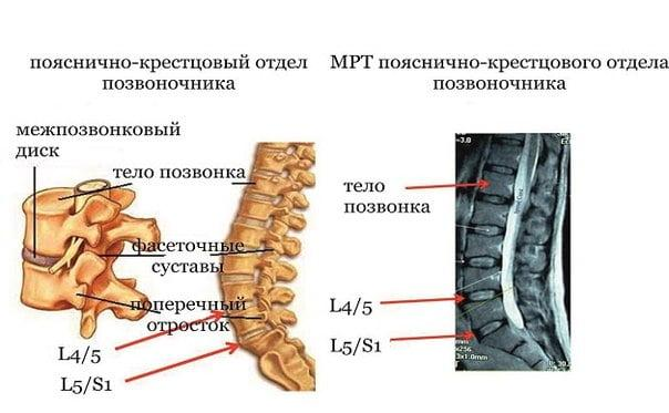Операция грыжи позвоночника видео бубновского