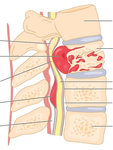 Опухоль позвоночника: доброкачественная и злокачественная природа