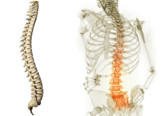Перелом грудного отдела позвоночника: о травме